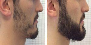 greffe-barbe-Tunisie
