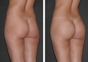 augmentation-fesse-Tunisie
